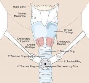 دستگاه ساکشن ریه