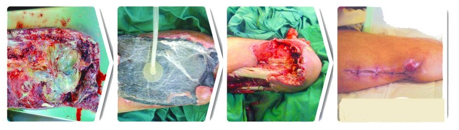 دستگاه ساکشن زخم